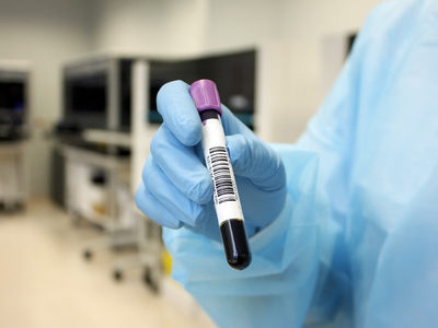 788 Blood Biomarkers for Cancer Cataloged