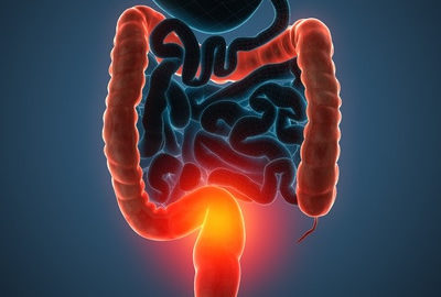 Role of Retinoic Acid Deficiency in Bowel Cancer Development Explored