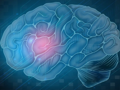 Glioblastoma Linked to the Normal Brain Healing Process After Injury