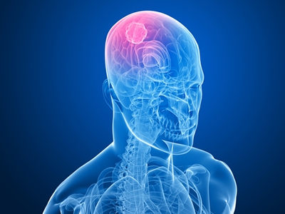 New Imaging Scans Reveal Brain Tumor Firmness and Adhesion Prior to Surgery