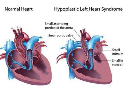 Hypoplastic Left Heart Syndrome Genes Identified