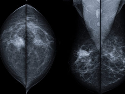 Mayo Clinic Uses Nanoparticles Used to Shrink Breast Tumors