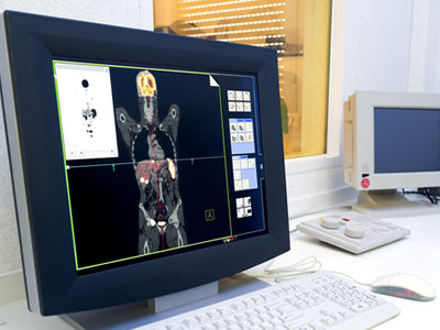 Noninvasive PET Imaging Used to Determine Likely Response to Immunotherapy