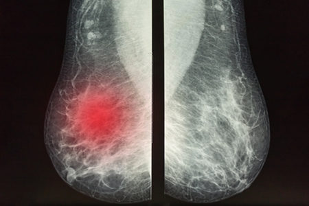 Infrared Imaging System Increases Visibility into Dense Breast Tissue for Faster Cancer Diagnosis