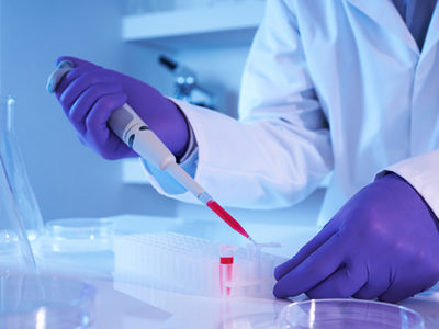 Blood Test for Alzheimer's Disease Delivers Promising Results