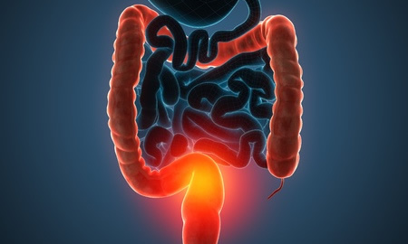 Colorectal Cancer Mutational Signature Linked to High Red Meat Consumption