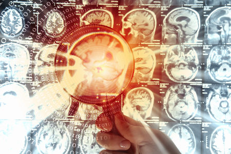 Parkinson's Disease Stem Cell Treatment Trial Underway