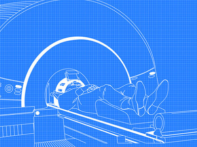 fMRI Analytical Imaging Technology Identifies Cerebral Vascular Disorders Without Contrast Agents