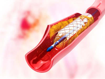 Advances Made in the Generation of Functional Arteries from Stem Cells