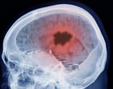 Antihistamine Drug Shown to Stop Glioblastoma Tumor Growth in Mice