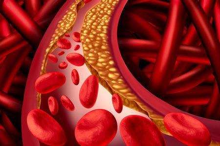 New Imaging Technique Accurately Identifies Cholesterol in Arterial Plaque
