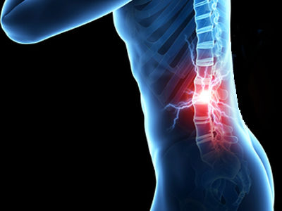 Stem Cell Injections Could Improve Outlook for Patients with Traumatic Spinal Cord Injuries