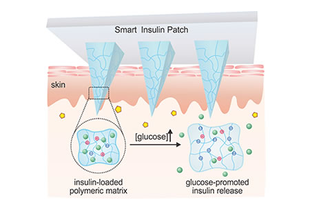 24-Hour Smart Insulin Patch Monitors and Manages Glucose to Control Diabetes