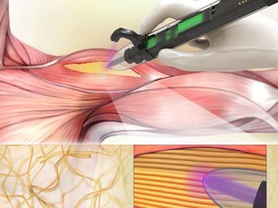 Handheld 3D Bioprinter Developed to Treat Volumetric Muscle Loss in Situ