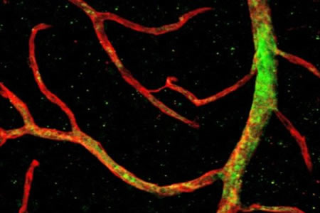Efficient Revascularization of the Retina Using Primitive Stem Cells