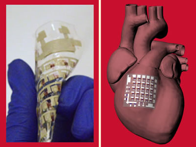 Implantable Cardiac Patch Monitors and Treats Heart Disease without Drawbacks of Pacemakers