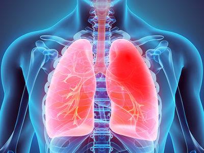 Novel RNA Sequencing Technique Provides Insights into Tuberculosis Progression