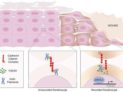 UCI Researchers Shed Light on Molecular Mechanisms Involved in Wound Healing